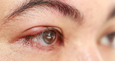 Effective Blepharitis Treatment